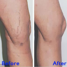 Spider Vein Treatment